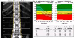 DXA Lumbar vertebral column Osteopenia es.png