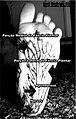Fasciaplantar-frontal.jpg