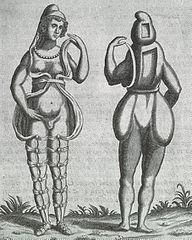 Wikipedia hermaphrodit Category:Hermaphrodite by