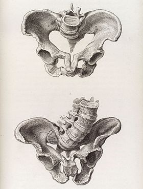 Illustration of a deformed female pelvis - angular distortion Wellcome L0038229.jpg
