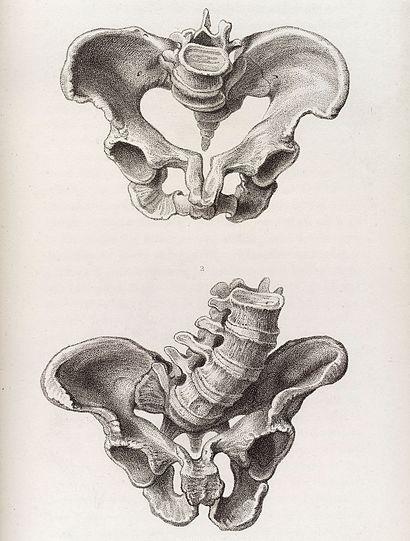 Illustration of a deformed female pelvis - angular distortion Wellcome L0038229.jpg