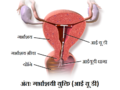 Intra uterine device hindi.png