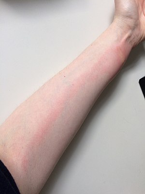 Lymphangitis after bed bug bites.jpg