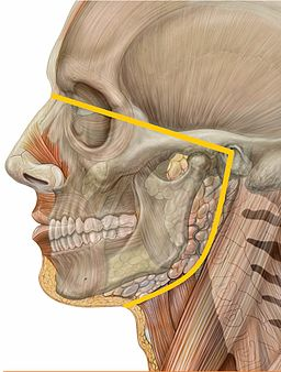 Orofacial pain Lateral head skull