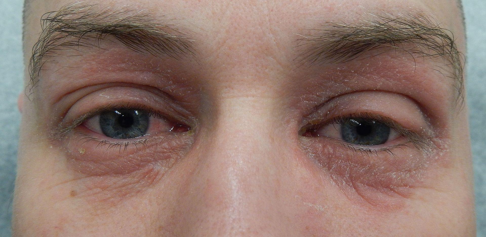 Skin Irritation Under Ring