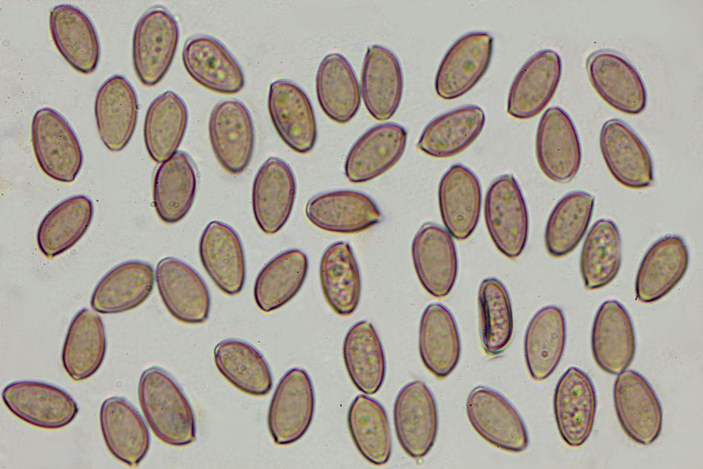 Výtrusy húb pod optickým mikroskopom