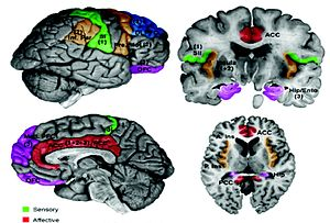 S2 is colored green and the insular cortex bro...