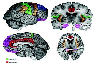 Secondary somatosensory cortex