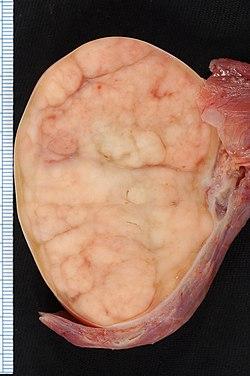 tumör i testiklarna