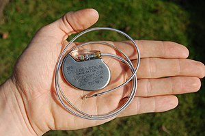 English: An artificial pacemaker from St. Jude...