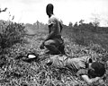 White phosporus booby trap casualty treated by medic in Vietnam 1966.JPEG