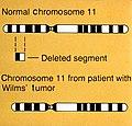 Wilms' tumor illustration.jpg