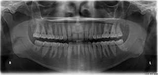 http://upload.wikimedia.org/wikipedia/commons/thumb/8/82/X-ray_of_all_32_human_teeth.jpg/320px-X-ray_of_all_32_human_teeth.jpg?uselang=de