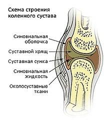 куда ставить пиявку при артрозе коленного сустава