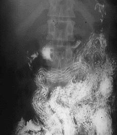 Ascaris infection in the x-ray image- ascaris arranged tidily along the long axis of the small bowel (South Africa) (16424840021).jpg
