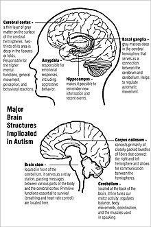Brains Of People With Autism Spectrum >> Causes Of Autism Wikipedia