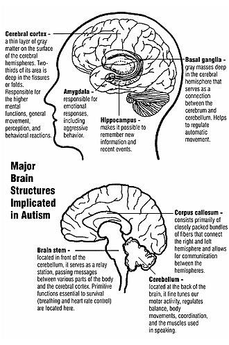 Self-awareness - Major brain structures implicated in autism.