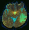 Brain MRI 122035 rgbc diffusion adc.png