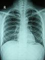Chest X-ray 2346.jpg