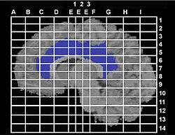 Talairach coordinates - Wikipedia