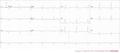 De-Triblock (CardioNetworks ECGpedia).png