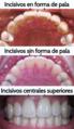 Dientes incisivos en forma de pala.png