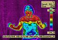 ETS-Surgery-Thermal.jpg