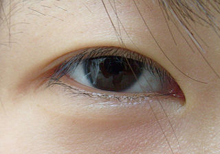 Epicanthic fold A fold on upper eye lid