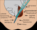 Episiotomie (Dammschnitt).png