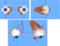ExtraOcular Muscles.png