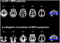 Figure 1 of Voxel-Based Morphometry in Women with Borderline Personality Disorder with and without Comorbid Posttraumatic Stress Disorder.png