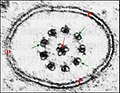Flagelle de spermatozoïde d' Araignée.jpg