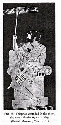 An ancient Greek treatment of a thigh injury. Use of a complex bandage can be seen.