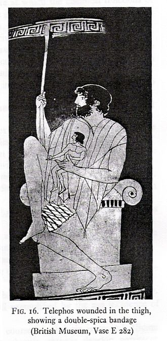 Bandage - The double-spica bandage used on thigh injuries in ancient Greece.