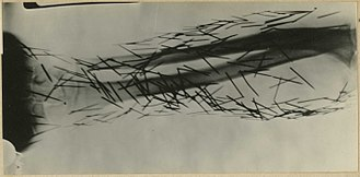Self-embedding - An X-ray image of Graphophone needles driven into the flesh by a psychiatric patient.