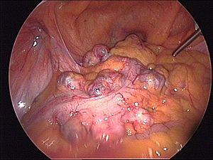 Intraoperative view of sigmoid diverticulitis.jpg
