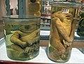 Istituto di anatomia patologica, museo, campioni 06 feti malformati.JPG