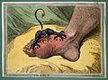 James Gillray, 'The Gout' Wellcome M0010580.jpg