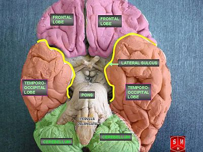 Inferior view of brain.