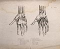 Muscles and bones of the hand; two figures of écorché hands. Wellcome V0008184EL.jpg