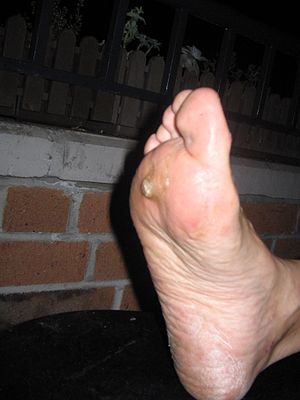 English: Plantar wart, very painful. The 51-ye...