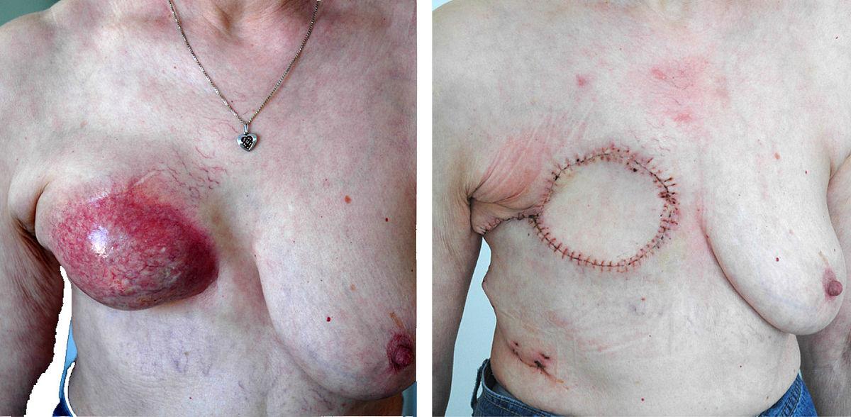 Biopsie: So werden Gewebeproben entnommen