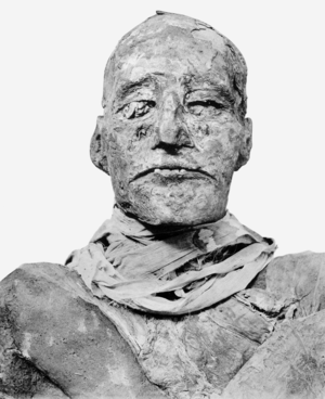 Harem conspiracy - Mummy of Ramesses III, victim of the conspiracy