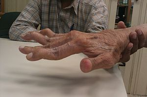 Swan neck deformity in a 65 year old Rheumatoid Arthritis patient- 2014-05-27 01-49.jpg