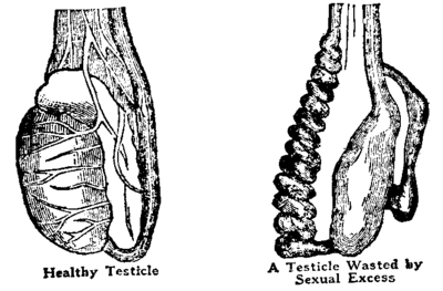 Testicle before and after.png