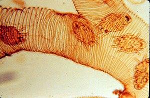 Acarapis woodi - Image: Tracheal mite Acarapis woodi