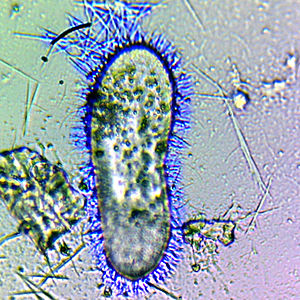 Trichocyst - Paramecium tetraurelia, a ciliate, with discharged trichocysts (artificially colored in blue).