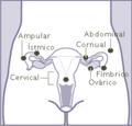 Ubicación embarazo ectópico.png