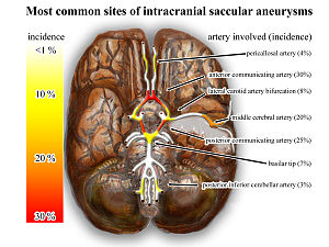 English: The most common sites of intracranial...