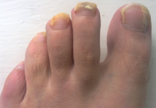A Persons Foot With Fungal Nail Infection Ten Weeks Into Course Of Terbinafine Oral Medication Note The Band Healthy Pink Growth Behind